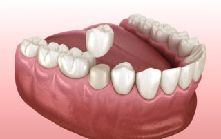 dental crown picture