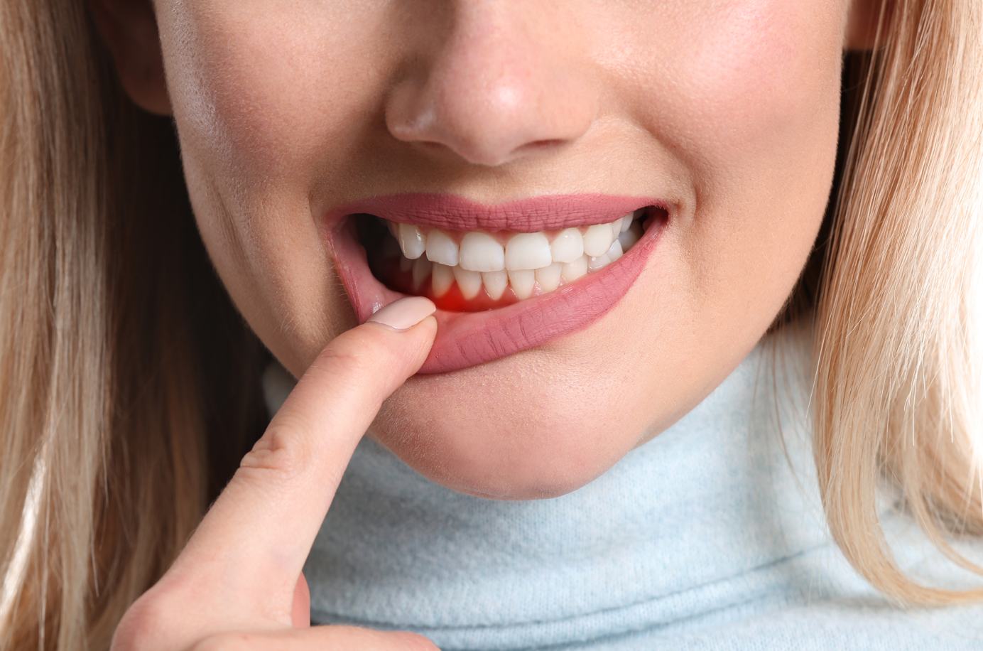 periodontal therapy for woman with gum disease